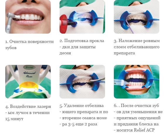 splant-rus-teethwhitening-3913