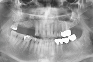 ENG05-Dental-Implant-02S-PLANT-Benefits_img_09