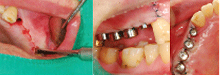 ENG05-Dental-Implant-02S-PLANT-Benefits_img_29
