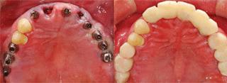 ENG05-Dental-Implant-02S-PLANT-Benefits_img_37