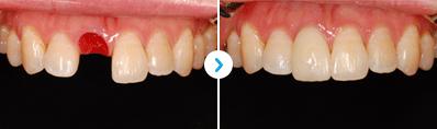 ENG05-Dental-Implant-03Dental-Implant_img02