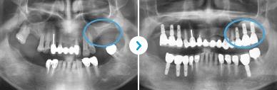 ENG05-Dental-Implant-03Dental-Implant_img03