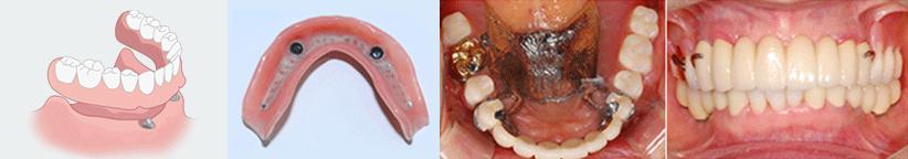 ENG05-Dental-Implant-03Dental-Implant_img04