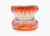 ENG06-Orthodontics_03