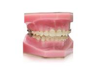 ENG06-Orthodontics_04