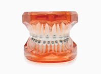 ENG06-Orthodontics_03