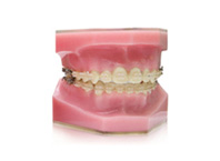 ENG06-Orthodontics_04