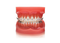ENG06-Orthodontics_05
