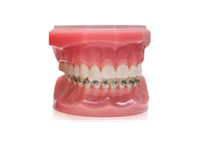 ENG06-Orthodontics_06